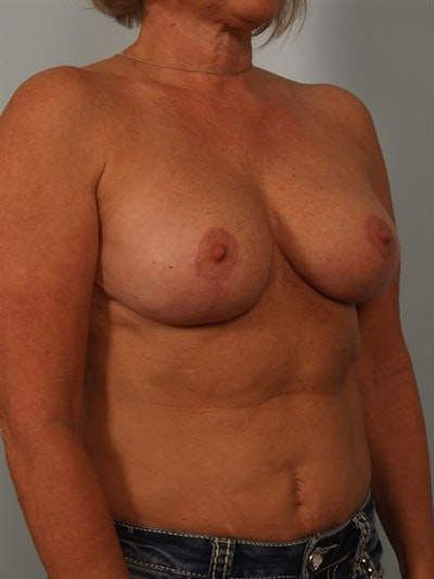 Breast Reduction Gallery - Patient 1310645 - Image 4