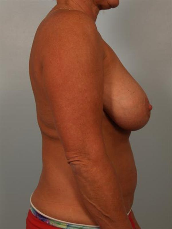 Breast Reduction Gallery - Patient 1310645 - Image 5