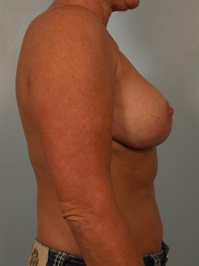 Breast Reduction Gallery - Patient 1310645 - Image 6