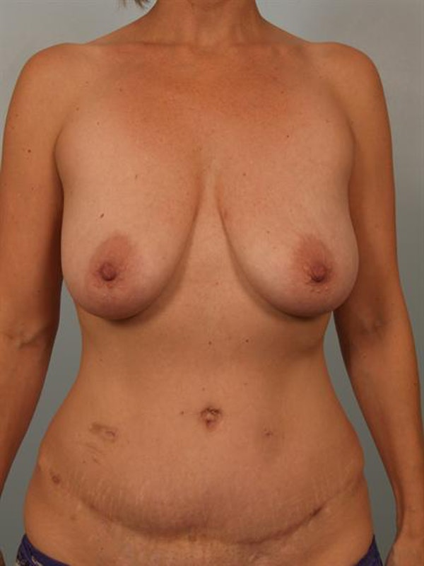 Breast Lift Gallery - Patient 1310649 - Image 1
