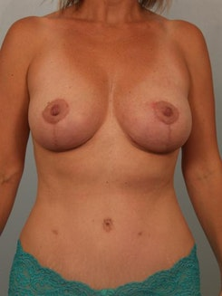 Image2 - Before and after image of Breast Lift by Dr. Cohen.