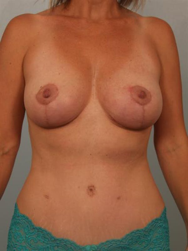 Breast Lift Gallery - Patient 1310649 - Image 2