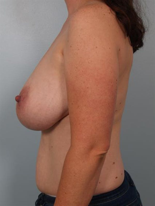Breast Reduction Gallery - Patient 1310651 - Image 3