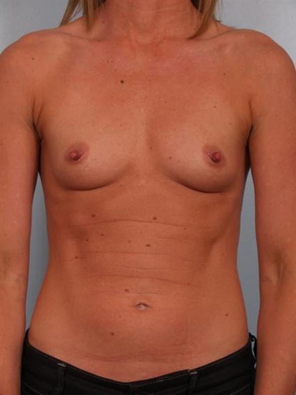 Breast Augmentation Gallery - Patient 1310652 - Image 1