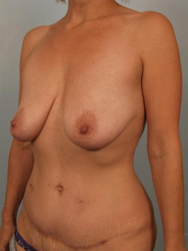 Breast Lift Gallery - Patient 1310649 - Image 3