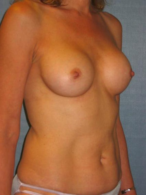 Complex Breast Revision Gallery - Patient 1310653 - Image 3