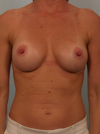 Breast Augmentation Gallery - Patient 1310652 - Image 2
