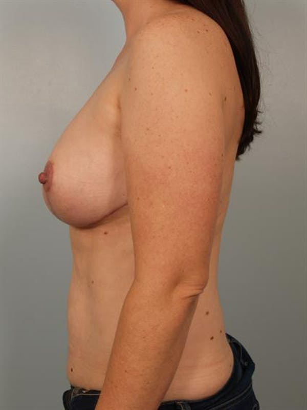 Breast Reduction Gallery - Patient 1310651 - Image 4