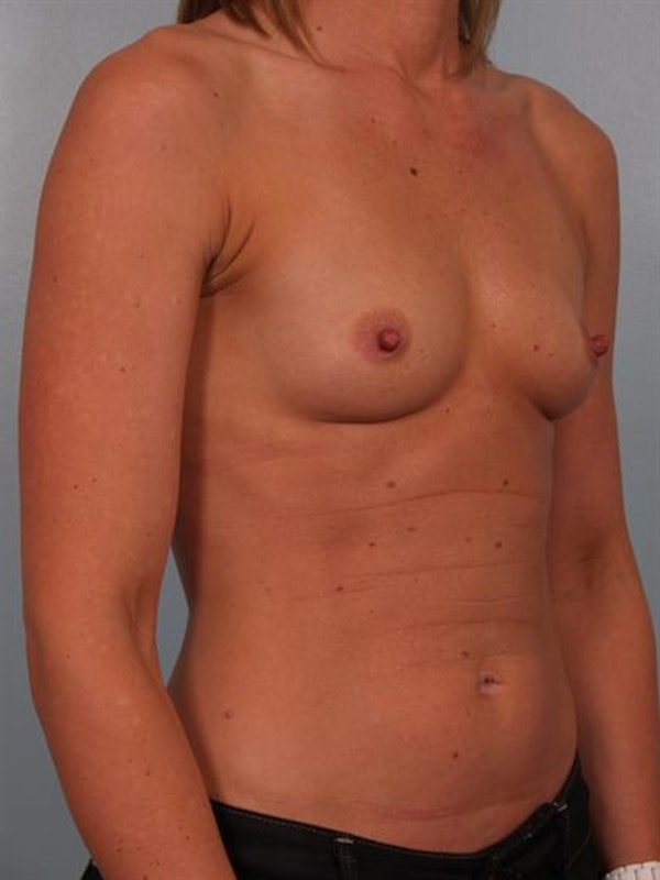 Breast Augmentation Gallery - Patient 1310652 - Image 3