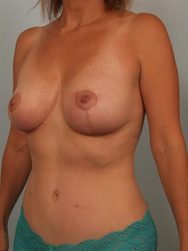 Breast Lift Gallery - Patient 1310649 - Image 4
