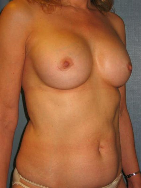 Complex Breast Revision Gallery - Patient 1310653 - Image 4