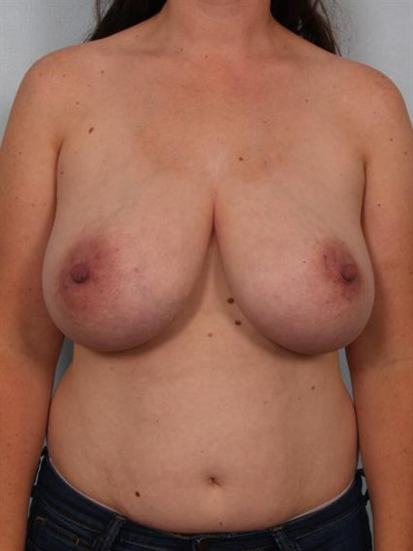 Breast Reduction Gallery - Patient 1310651 - Image 1