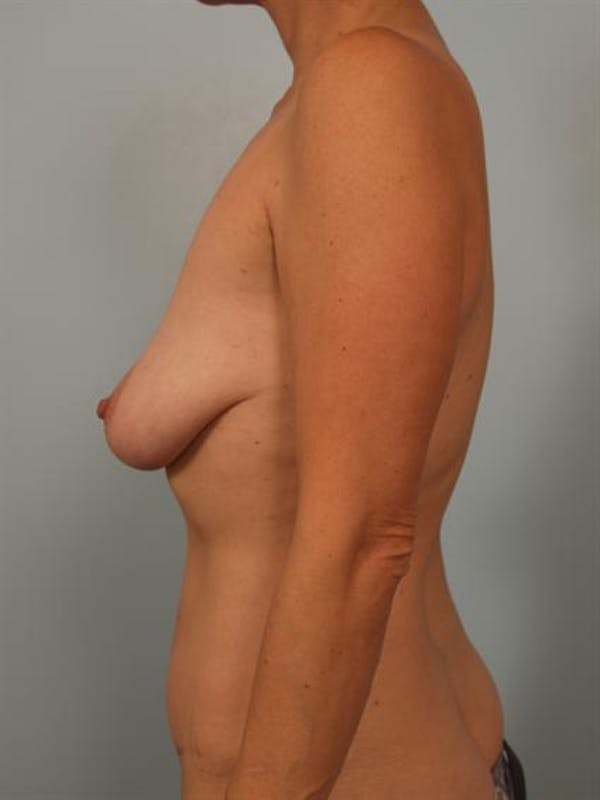 Breast Lift Gallery - Patient 1310649 - Image 5