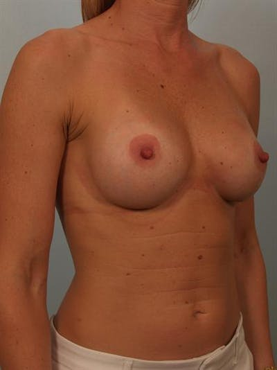 Breast Augmentation Gallery - Patient 1310652 - Image 4