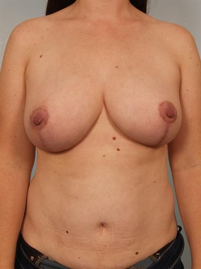 Breast Reduction Gallery - Patient 1310651 - Image 2
