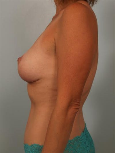 Breast Lift Gallery - Patient 1310649 - Image 6