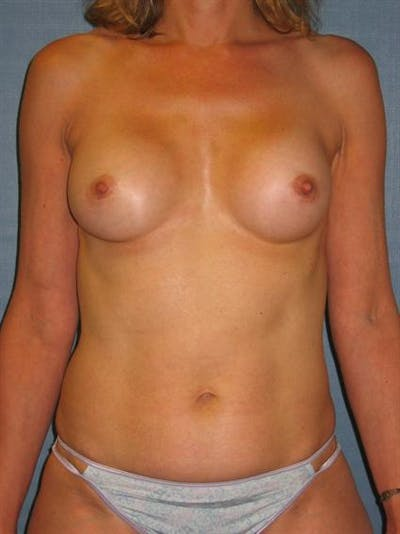 Complex Breast Revision Gallery - Patient 1310653 - Image 1