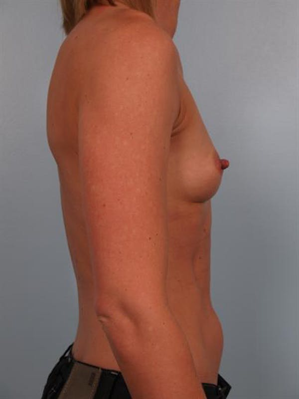 Breast Augmentation Gallery - Patient 1310652 - Image 5