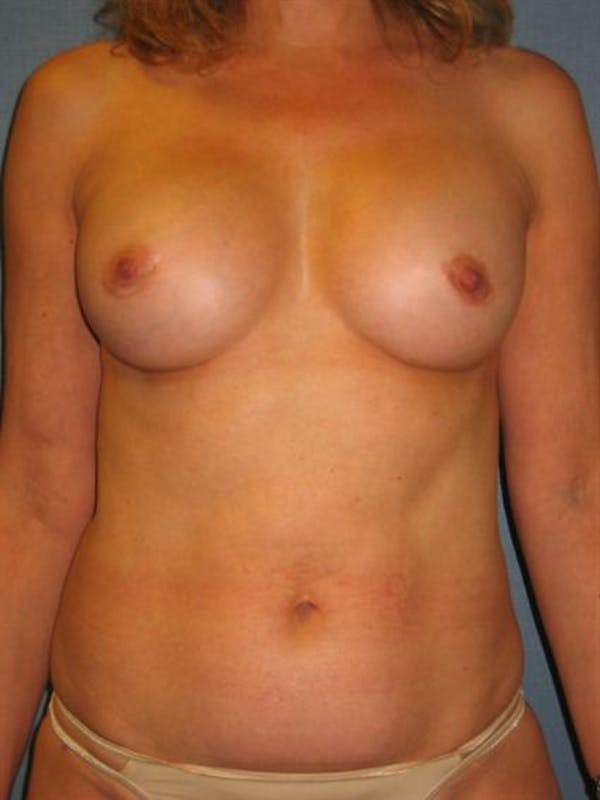 Complex Breast Revision Gallery - Patient 1310653 - Image 2