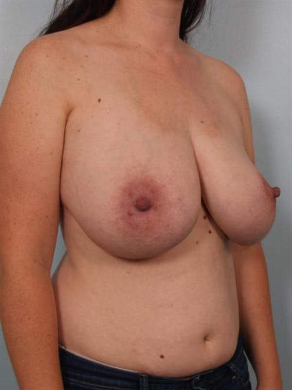 Breast Reduction Gallery - Patient 1310651 - Image 5