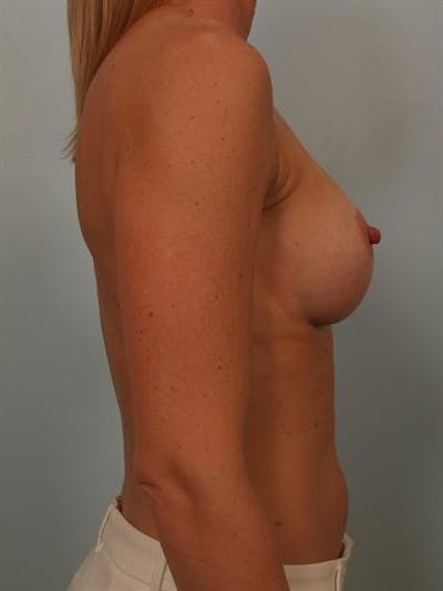 Breast Augmentation Gallery - Patient 1310652 - Image 6