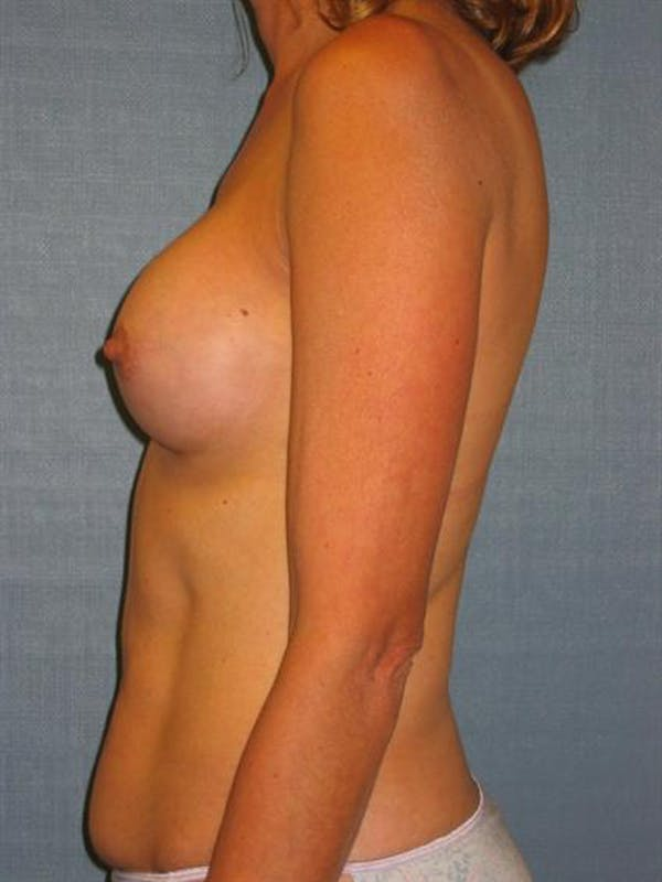 Complex Breast Revision Gallery - Patient 1310653 - Image 5