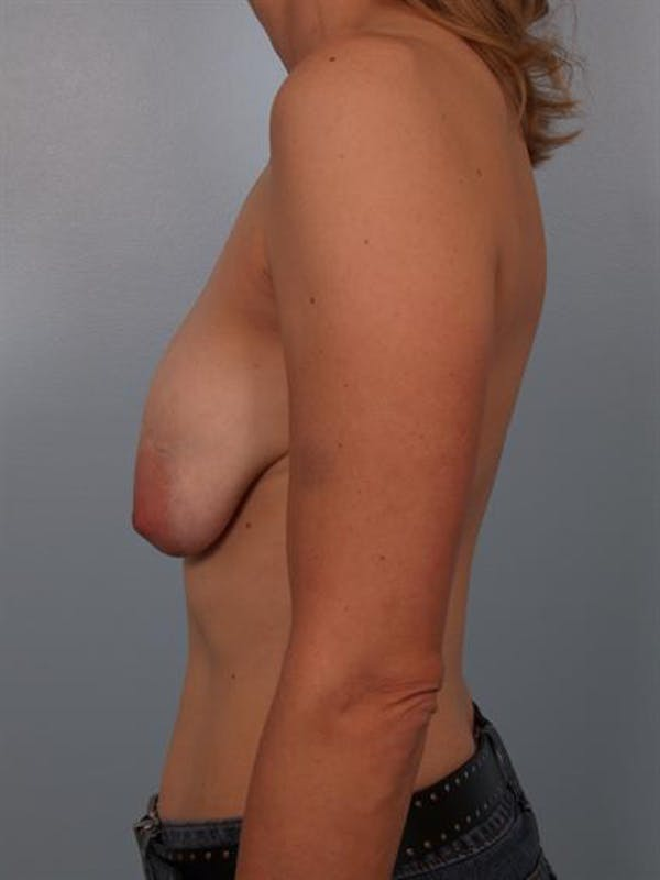 Breast Lift Gallery - Patient 1310655 - Image 3