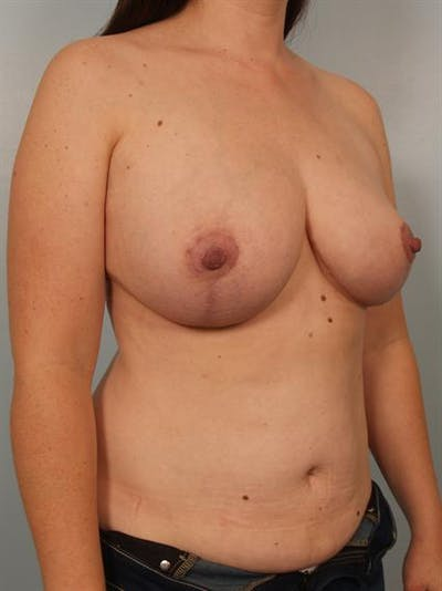 Breast Reduction Gallery - Patient 1310651 - Image 6