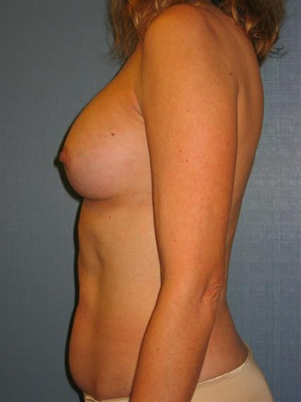 Complex Breast Revision Gallery - Patient 1310653 - Image 6