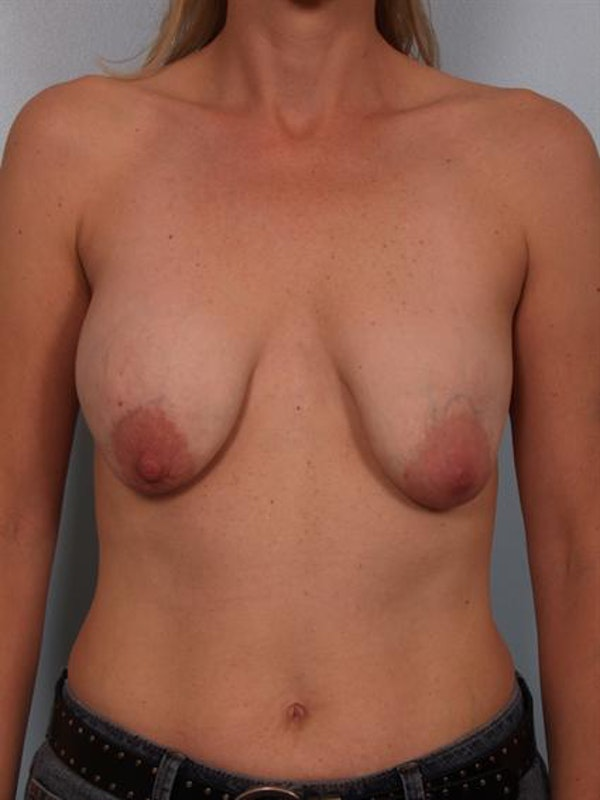 Breast Lift Gallery - Patient 1310655 - Image 1