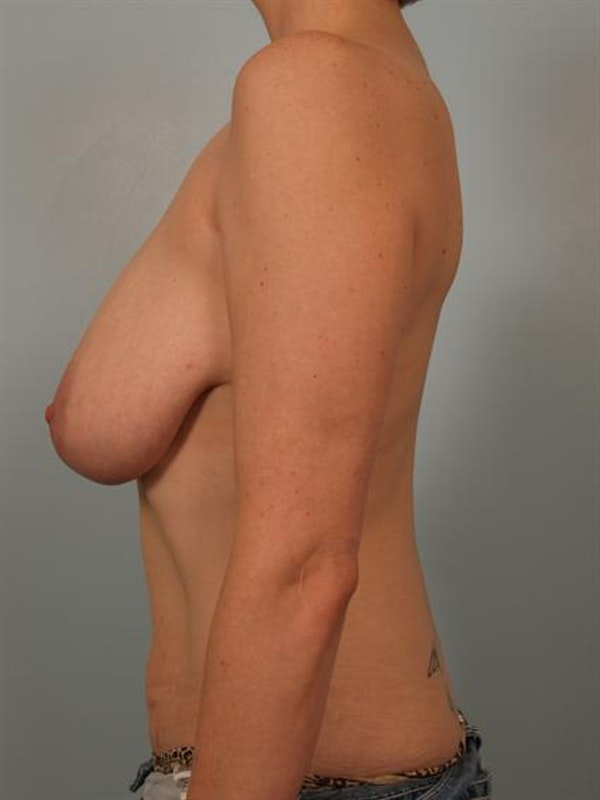 Breast Reduction Gallery - Patient 1310657 - Image 3