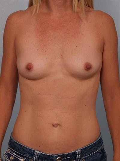 Breast Augmentation Gallery - Patient 1310660 - Image 1