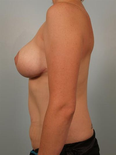 Breast Reduction Gallery - Patient 1310657 - Image 4