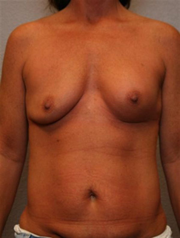 Complex Breast Revision Gallery - Patient 1310659 - Image 1