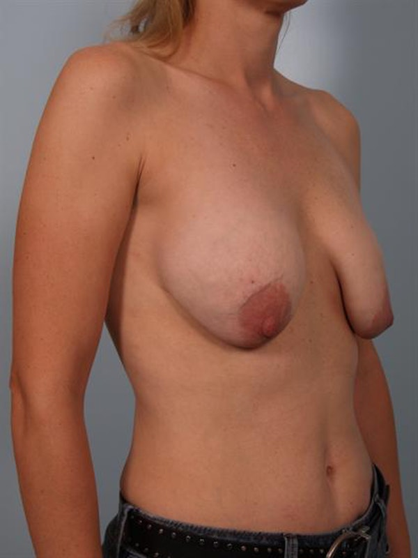 Breast Lift Gallery - Patient 1310655 - Image 5