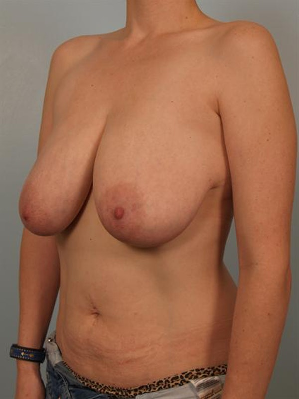 Breast Reduction Gallery - Patient 1310657 - Image 5