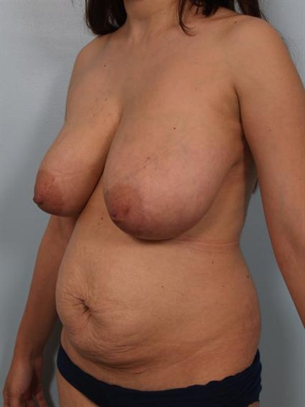 Mommy Makeover Gallery - Patient 1310656 - Image 3