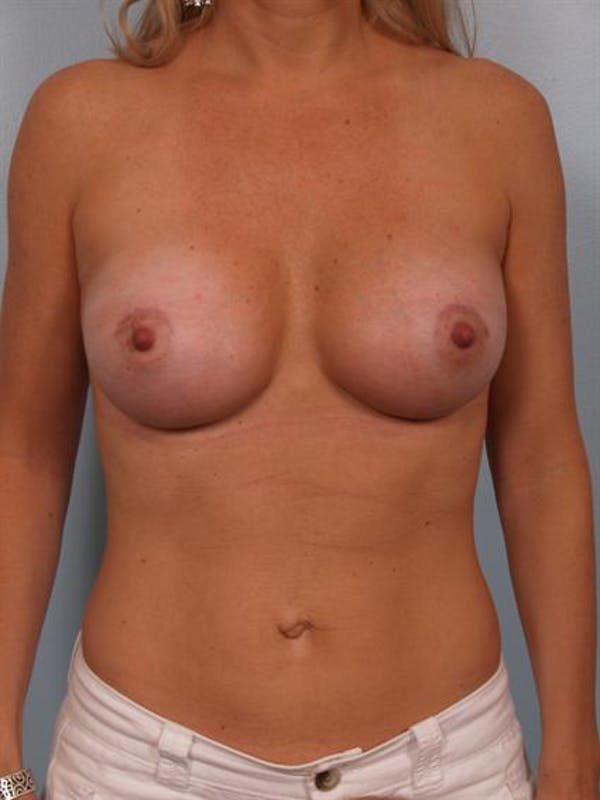 Breast Augmentation Gallery - Patient 1310660 - Image 2