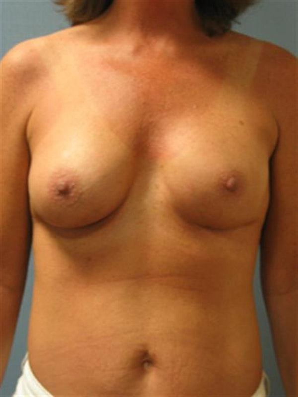 Complex Breast Revision Gallery - Patient 1310659 - Image 2