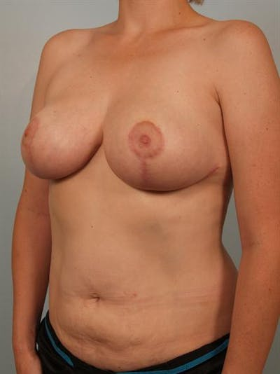 Breast Reduction Gallery - Patient 1310657 - Image 6