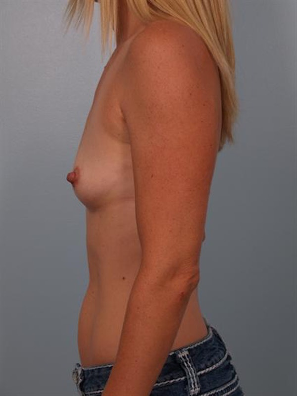 Breast Augmentation Gallery - Patient 1310660 - Image 3