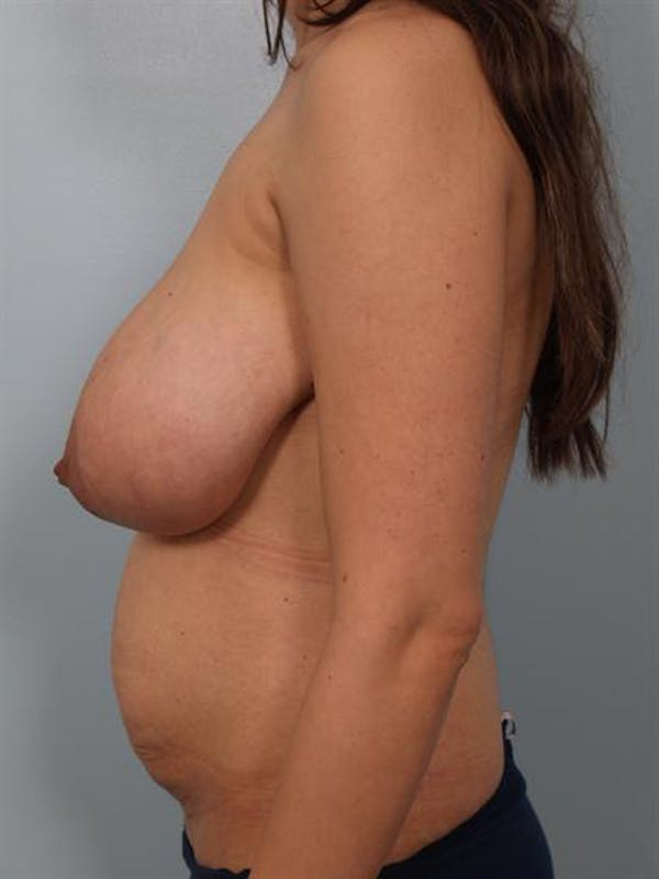 Mommy Makeover Gallery - Patient 1310656 - Image 5