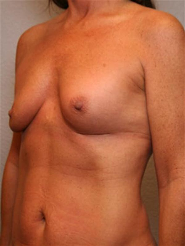 Complex Breast Revision Gallery - Patient 1310659 - Image 3
