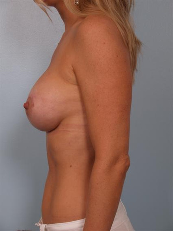 Breast Augmentation Gallery - Patient 1310660 - Image 4