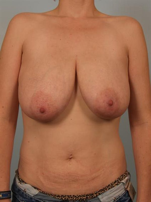 Breast Reduction Gallery - Patient 1310657 - Image 1