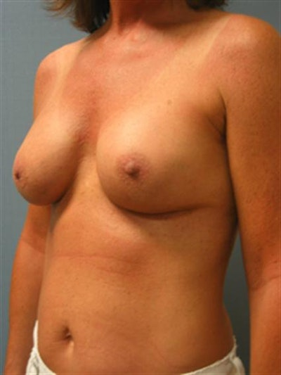Complex Breast Revision Gallery - Patient 1310659 - Image 4