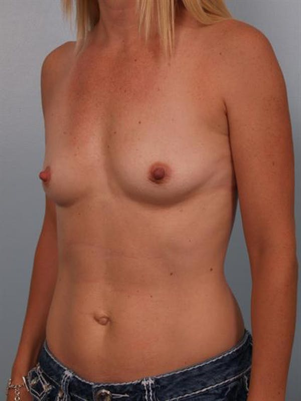 Breast Augmentation Gallery - Patient 1310660 - Image 5