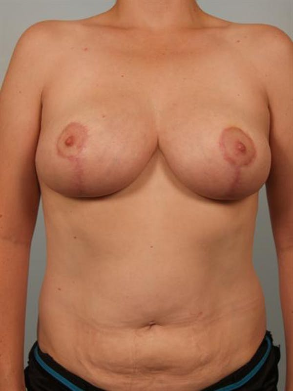 Breast Reduction Gallery - Patient 1310657 - Image 2