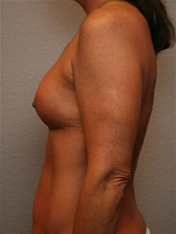 Complex Breast Revision Gallery - Patient 1310659 - Image 5