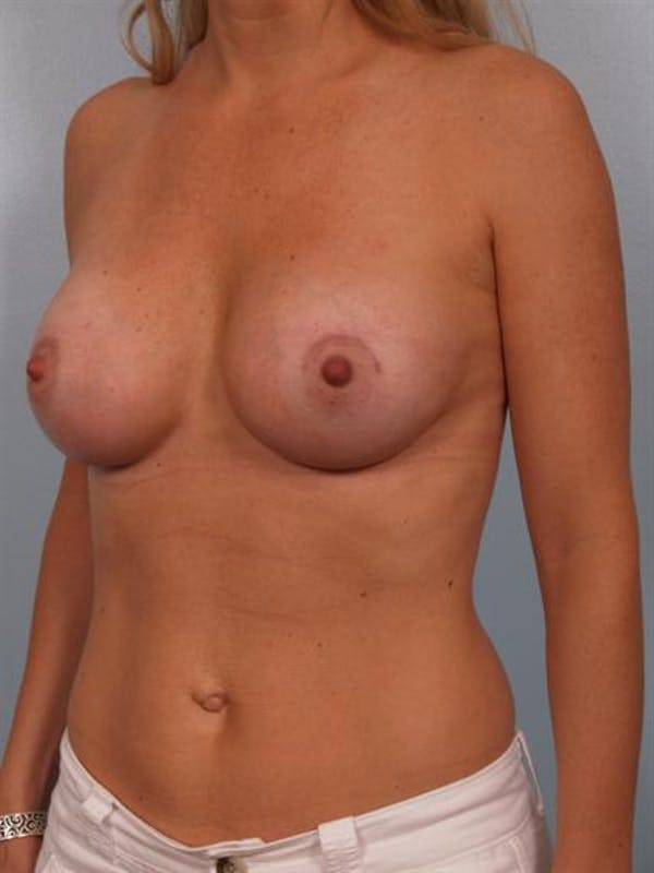 Breast Augmentation Gallery - Patient 1310660 - Image 6